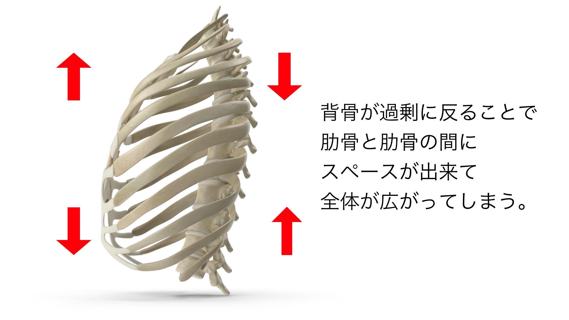 肋骨背骨過剰に反る